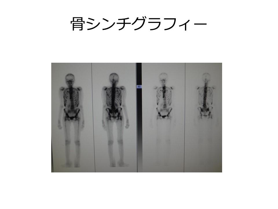 骨シンチグラフィー
