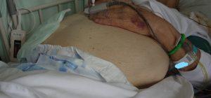 KM-CART後の腹部