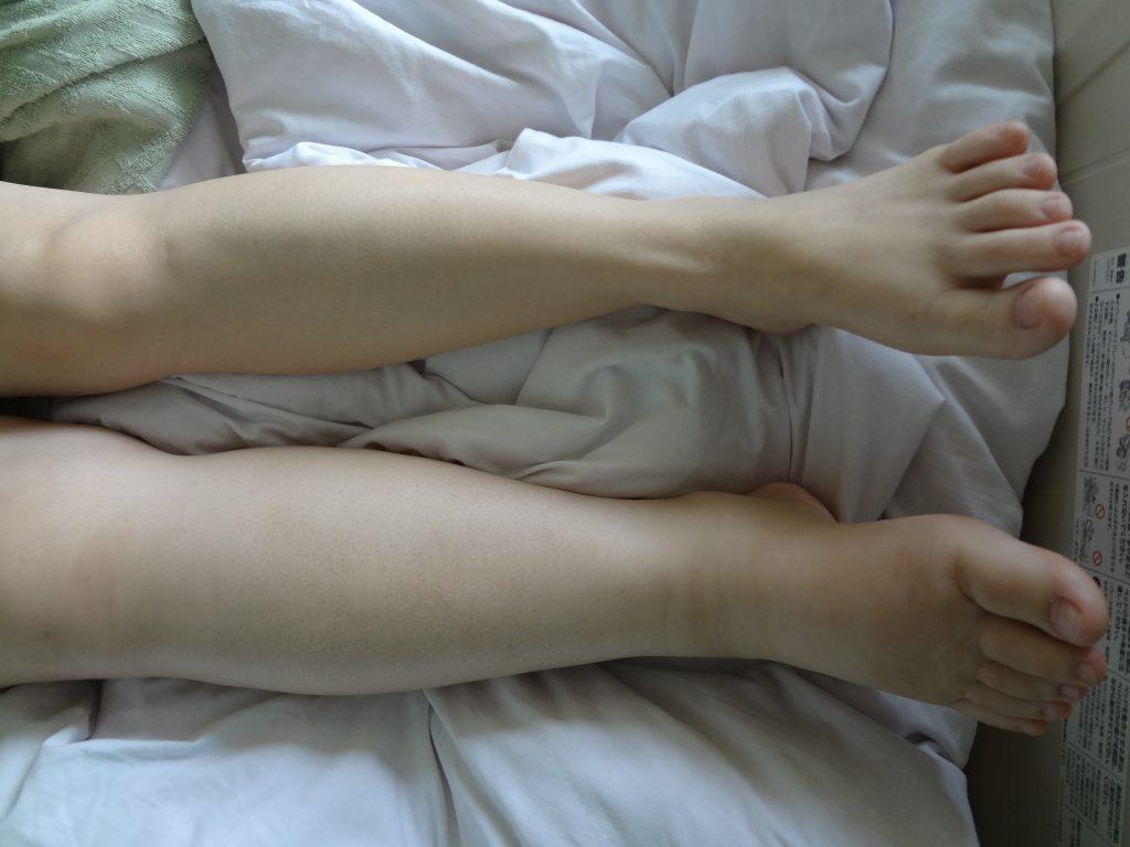リンパ浮腫+深部静脈血栓症
