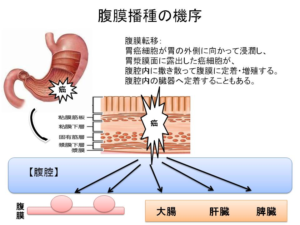 腹膜播種の機序