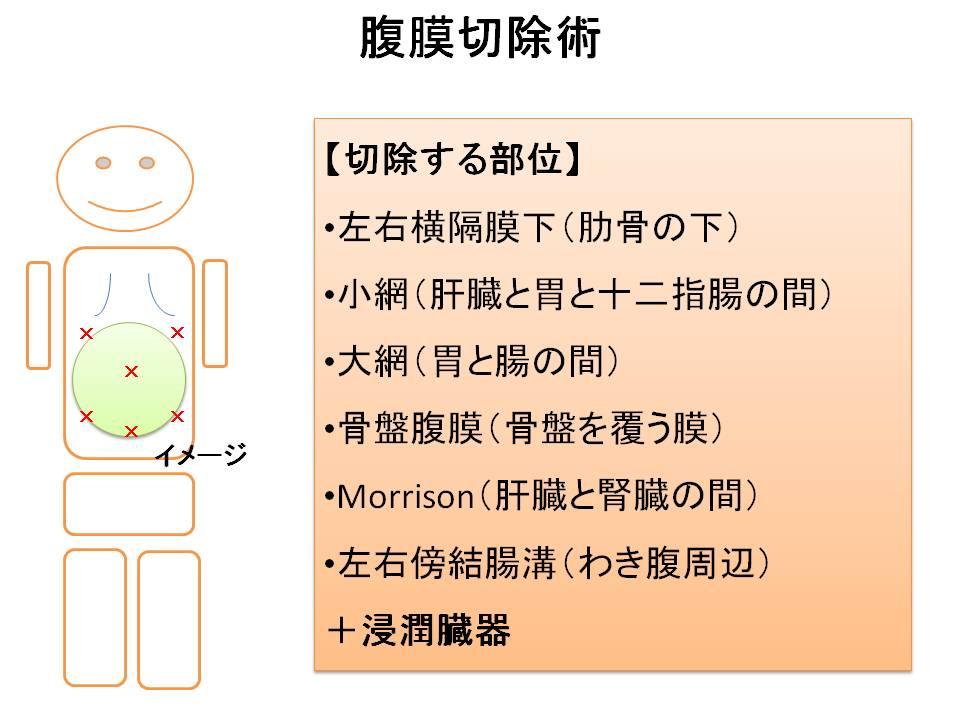 腹膜切除術
