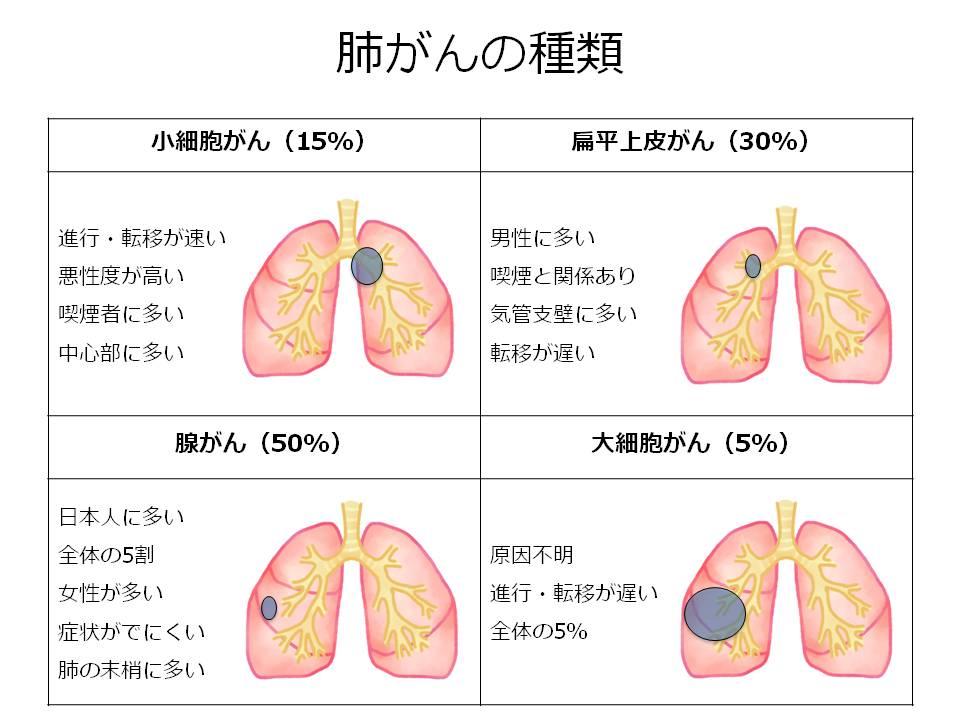 肺がんの種類。小細胞がん、扁平上皮がん、腺がん、大細胞がん